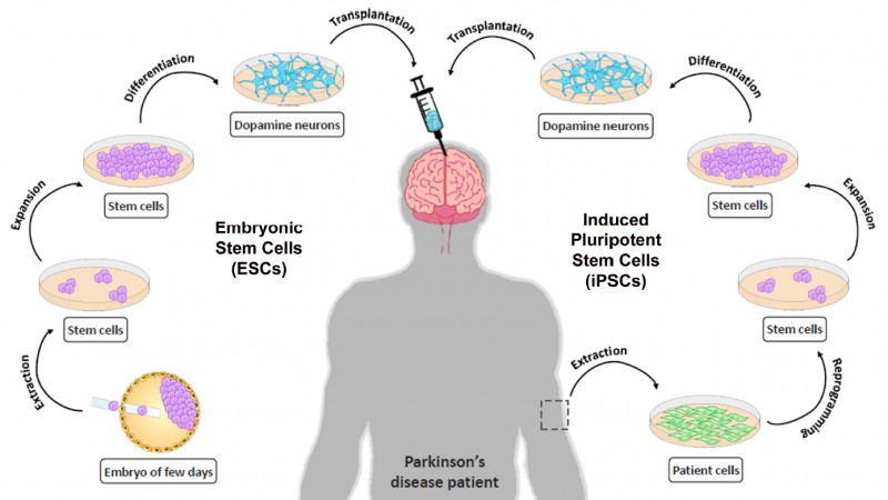 11 Complications Of Parkinson's Disease