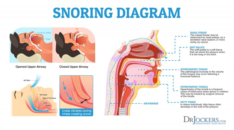 Snoring Can Worsen Heart Function, Especially In Women