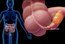 What Is Appendix Cancer?